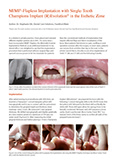 MIMI®-Flapless Implantation with Single-Tooth Champions® Implant (R)Evolution in the Esthetic Zone